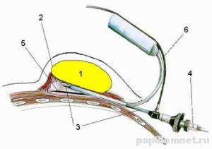 Схема удаления новообразования, номер 1 - это липома, номера 3, 4, 5 и 6 - хирургический прибор