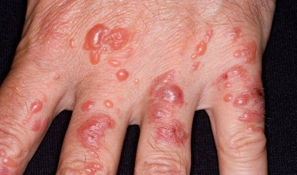 фото контактной формы заболевания