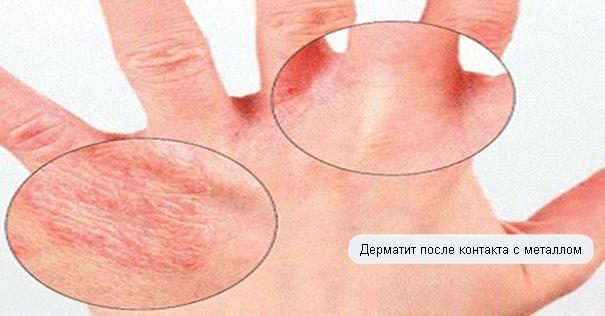 симптомы дерматита фото