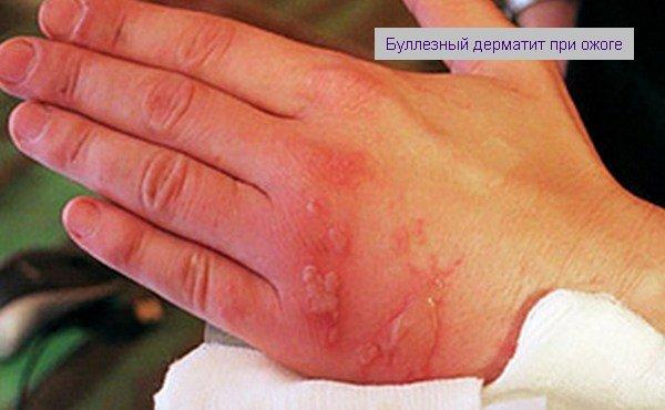 от ожога воспаление кожи