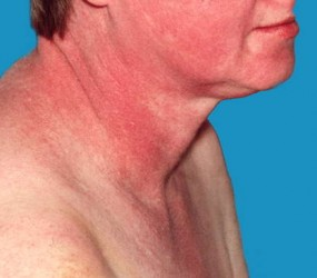 Покраснения при дерматомиозите