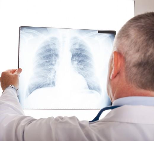 рентгеновский снимок лёгких