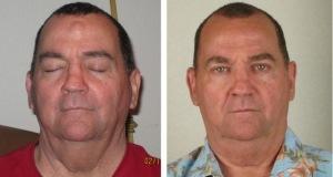Фотография до и после удаления липомы на лбу