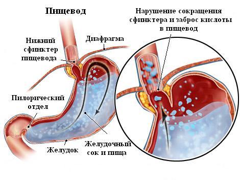 Нарушение сокращения сфинктера