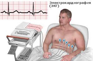 Диагностика проводится с помощью ЭКГ