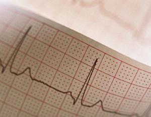 Электрокардиограмма покажет состояние вашего сердца