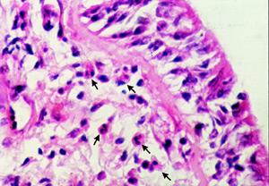 Поражение клапана под микроскопом