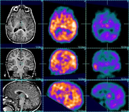 Разновидности эпилепсии
