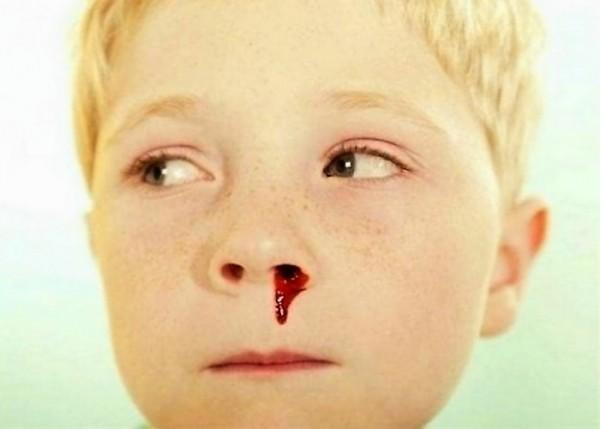 Эпистаксис — кровотечение из полости носа