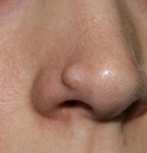 Типичное проявление фибромы