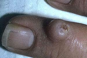 Фото фибромы, которая образовалась на пальце руки