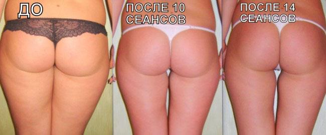 Фото до и после 14 сеансов массажа lpg