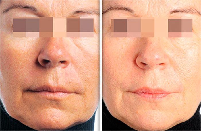 До и после массажа lpg лица