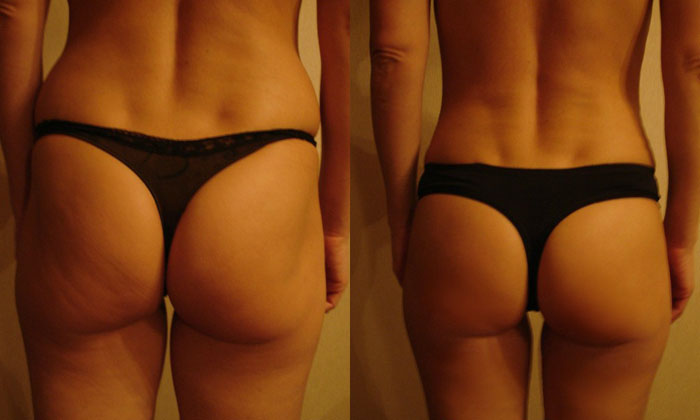 Фото до и после массажа lpg