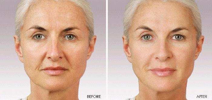 Фото результатов мезотерапии лица