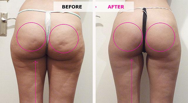 До и после мезотерапии от целлюлита