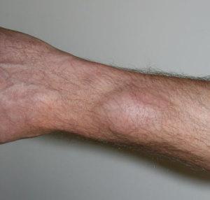 Фото большой липомы, которая образовалась на руке