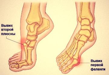 вывих пальцев ноги