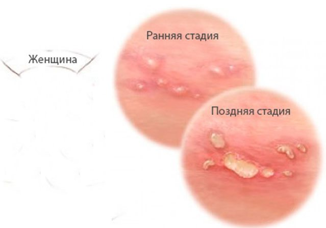фото стадий генитального герпеса у дам