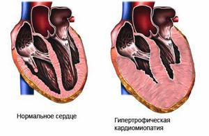 Пример здорового и больного сердца
