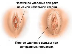 hirurg-lechenie