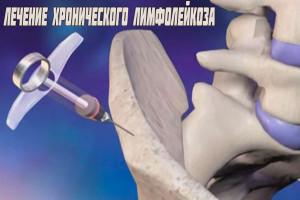 Лечение лимфолейкоза