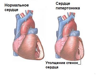сердце гипертоника