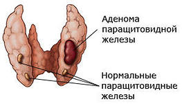 повышен паратгормон