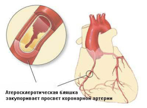 Причиной болезни может стать ишемическая болезнь сердца