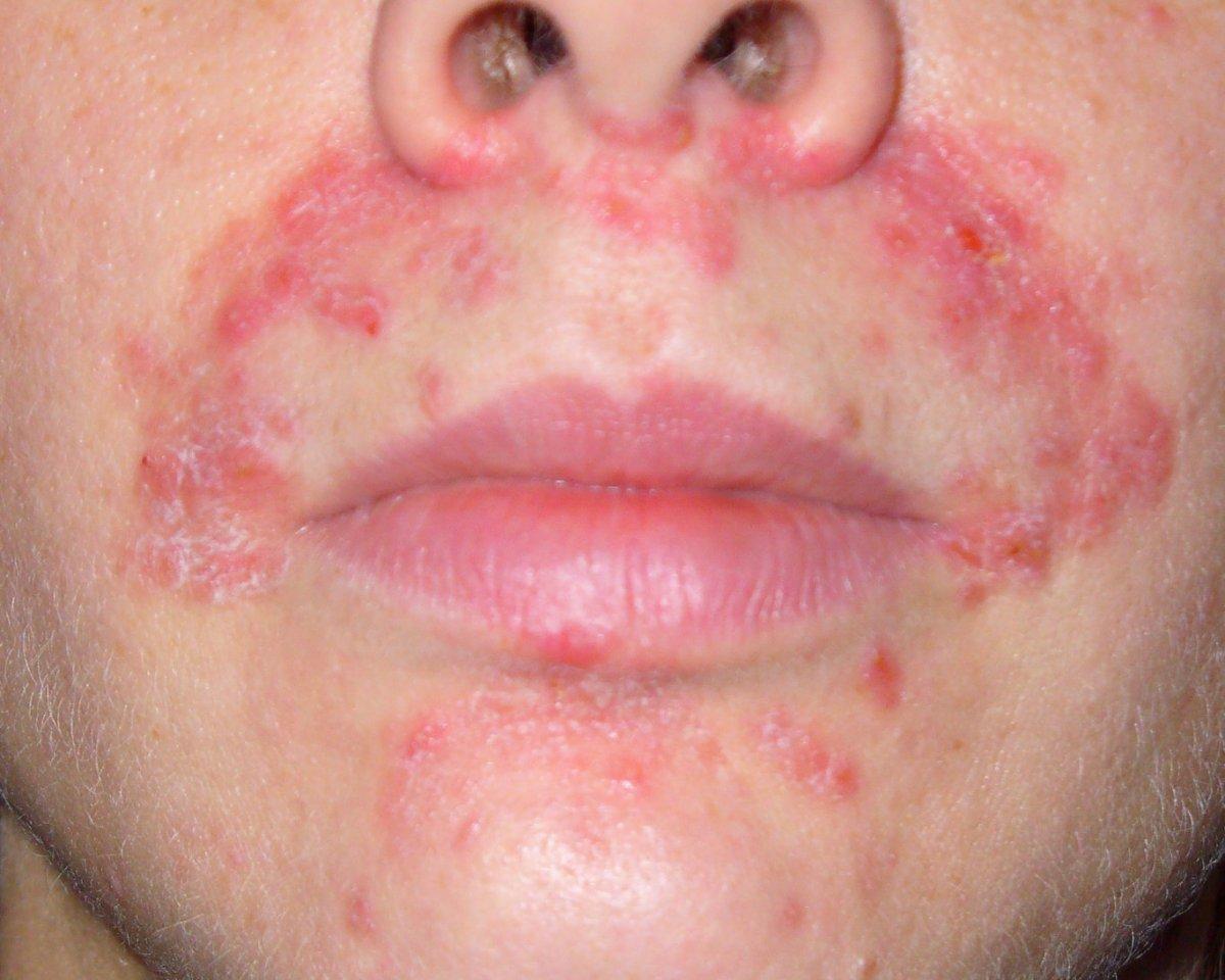 аллергическая сыпь на лице