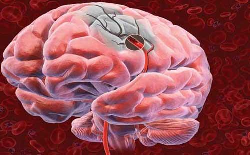 Из-за постоянных отложений на стенках сосудов, блокируется кровоснабжение головного мозга