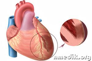 Одним из самых серьёзных осложнений является периоперационный инфаркт миокарда