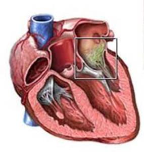 Эндокардит может возникнуть из-за любого воспалительного процесса или операции