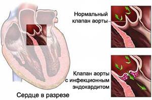 Сравнение клапанов при заболевании