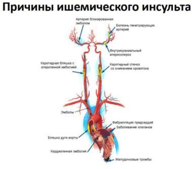 Причины возникновения инсульта