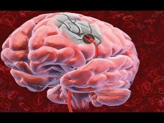 Отек головного мозга, ишемия