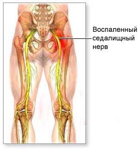 От чего может возникнуть воспаление нерва у человека