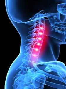 остеохондроз шейного отдела лечение дома