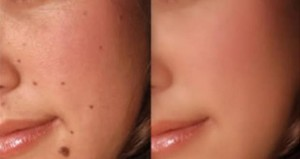 лечение кожи йодом