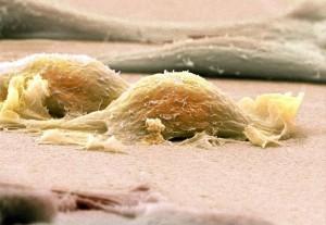 Саркома мягких тканей