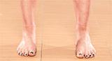 Нарушения осанки: стопы и голеностопные суставы