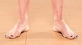 Нарушения осанки: одна или обе стопы смотрят наружу