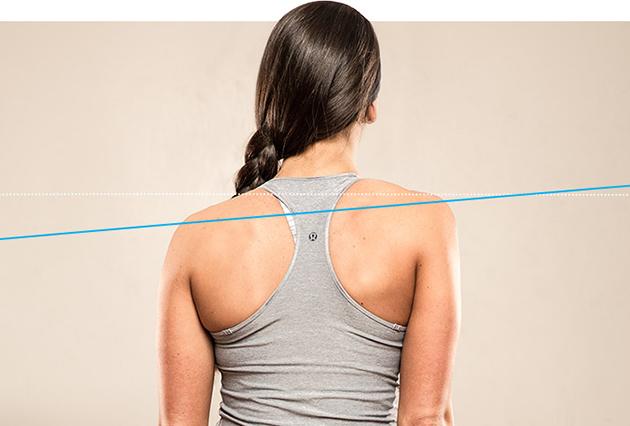 Нарушения осанки: неровные плечи