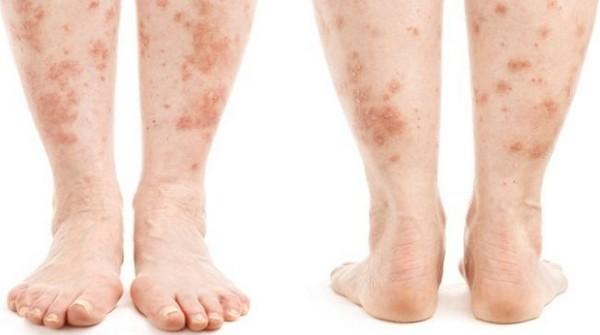 лечение дерматита ног