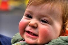 Как лечить диатез у новорожденных?
