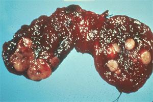 щитовидка в узлах