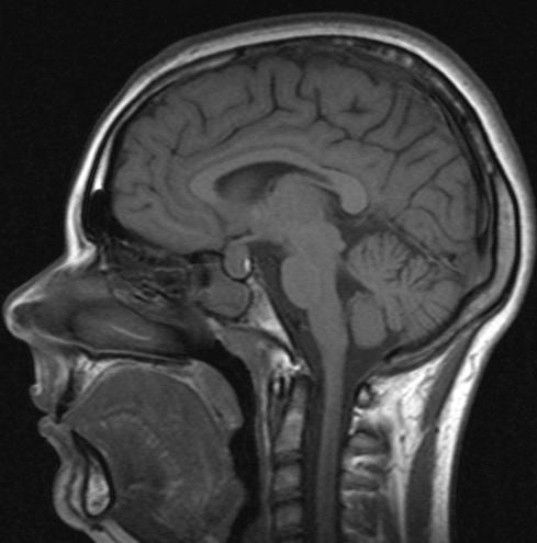 Проверка сосудов головы и шеи
