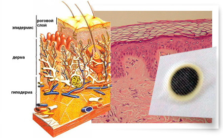 как работает пластырь от гипертонии