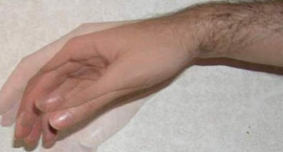 Тремор пальцев рук