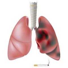Симптомы рака легких в зависимости от стадии